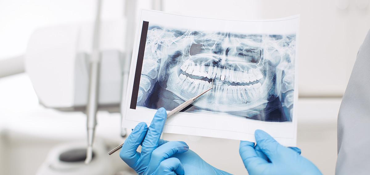Zahnbett- und Wurzelbehandlung